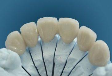 Коронка на зуба