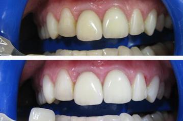Чем очистить налет с зубов